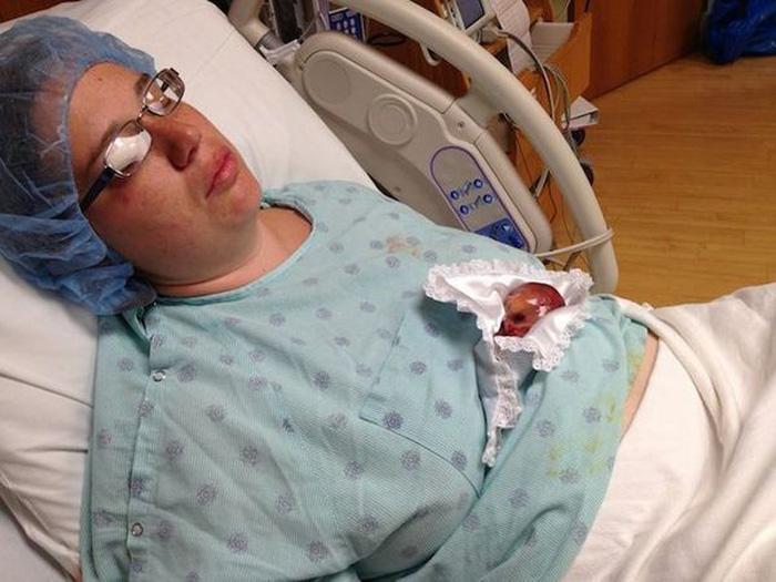 Он родился на пятом месяце беременности. Если бы немного позже, то могли бы спасти…