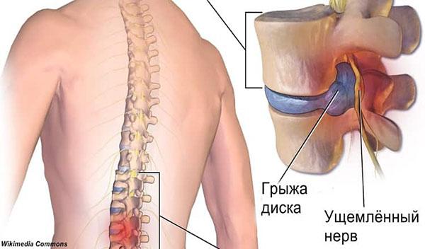 Как избавиться от болей межпозвоночной грыжи